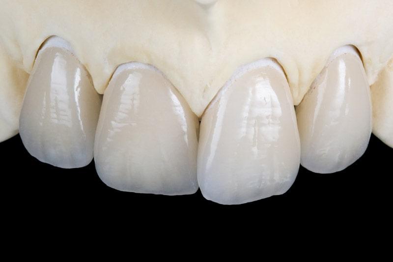 сколько стоят виниры на передние зубы спб